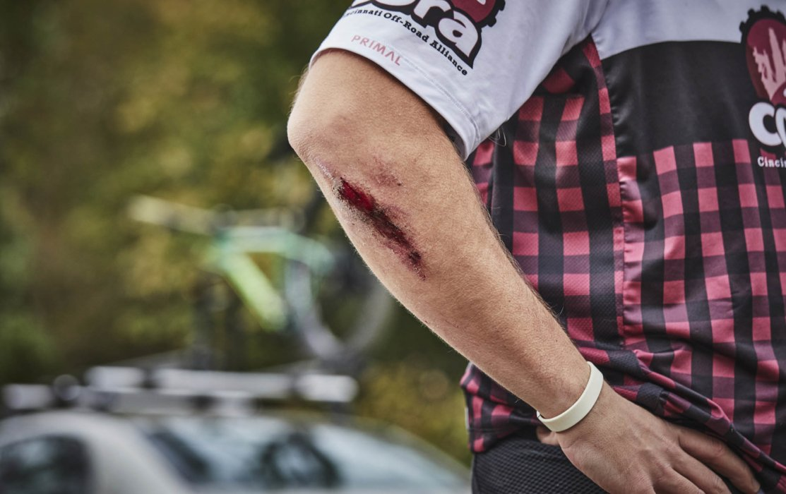 A cyclist with a scrape on his arm