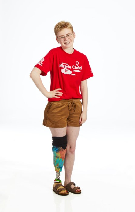 Portrait of a young woman with a disability for children's miracle network